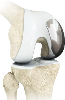 Bone Conserving Partial Knee Replacement
